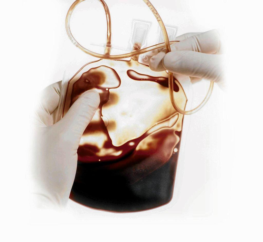 Przechowywanie krwi