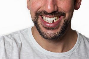 Utrata zęba ma poważne konsekwencje zdrowotne