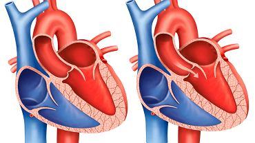 Stenoza aortalna, czyli zwężenie zastawki aorty, to wada serca, która utrudnia przepływ krwi z lewej komory do aorty.