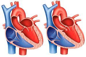 Stenoza aortalna - przyczyny, objawy, diagnoza, leczenie