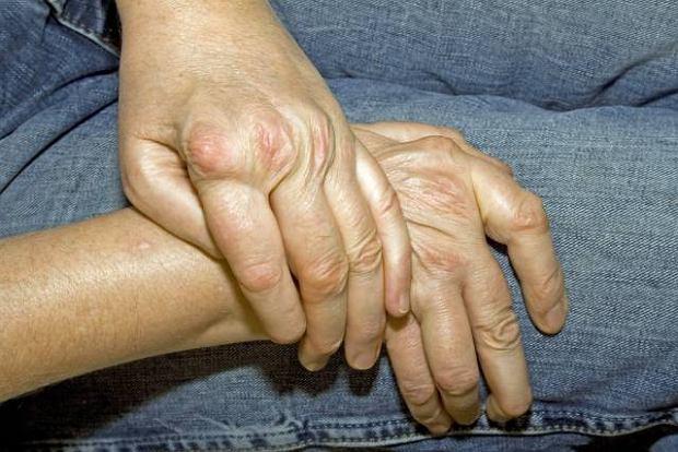 Kolagenozy - przyczyny choroby, diagnoza, leczenie