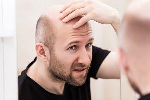 Męskie łysienie. Sprawcą kłopotów testosteron, czy jednak coś więcej?