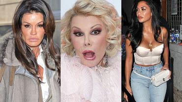 Mama S. Stallone nie przypomina siebie samej, a usta Scherzinger są gigantyczne. Te gwiazdy to ofiary zabiegów upiększających