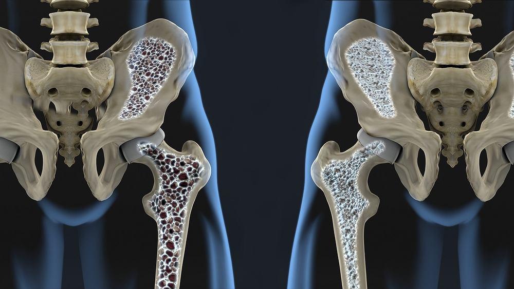 Prolia to lek stosowany przede wszystkim w leczeniu osteoporozy
