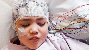 Przy podejrzeniu guza mózgu lekarz może zalecić szereg badań, m.in. tomografię komputerową, rezonans magnetyczny, czy  elektroencefalografię