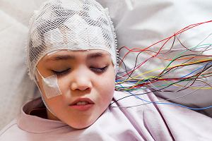Guzy mózgu u dzieci - jakie są objawy i metody leczenia nowotworów mózgu u dzieci?