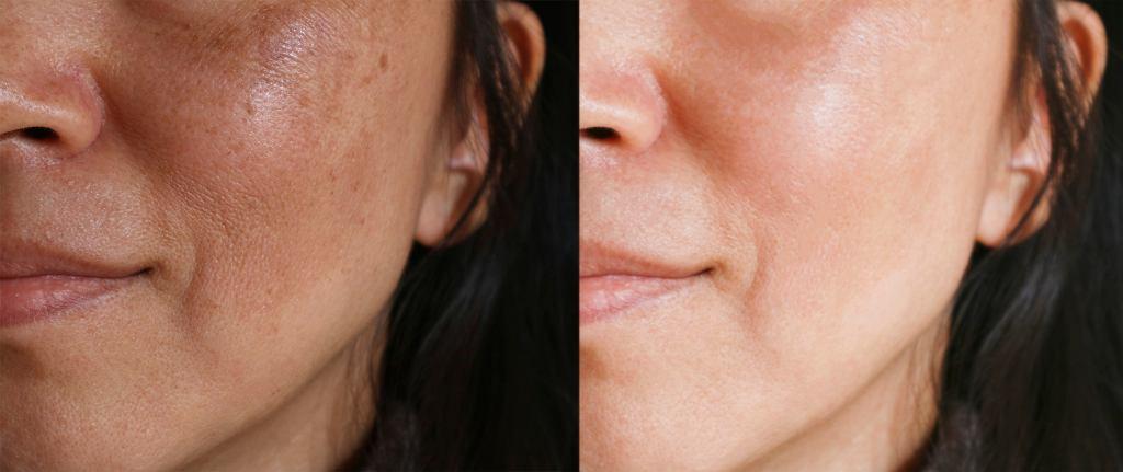 Pielęgnacja skóry problematycznej