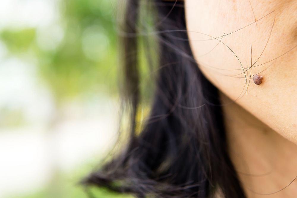 22-latka z Stanów Zjednoczonych miała pieprzyk na policzku. Okazało się, że to czerniak