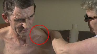 Źle zrośnięty obojczyka pana Joachima wystaje przez skórę
