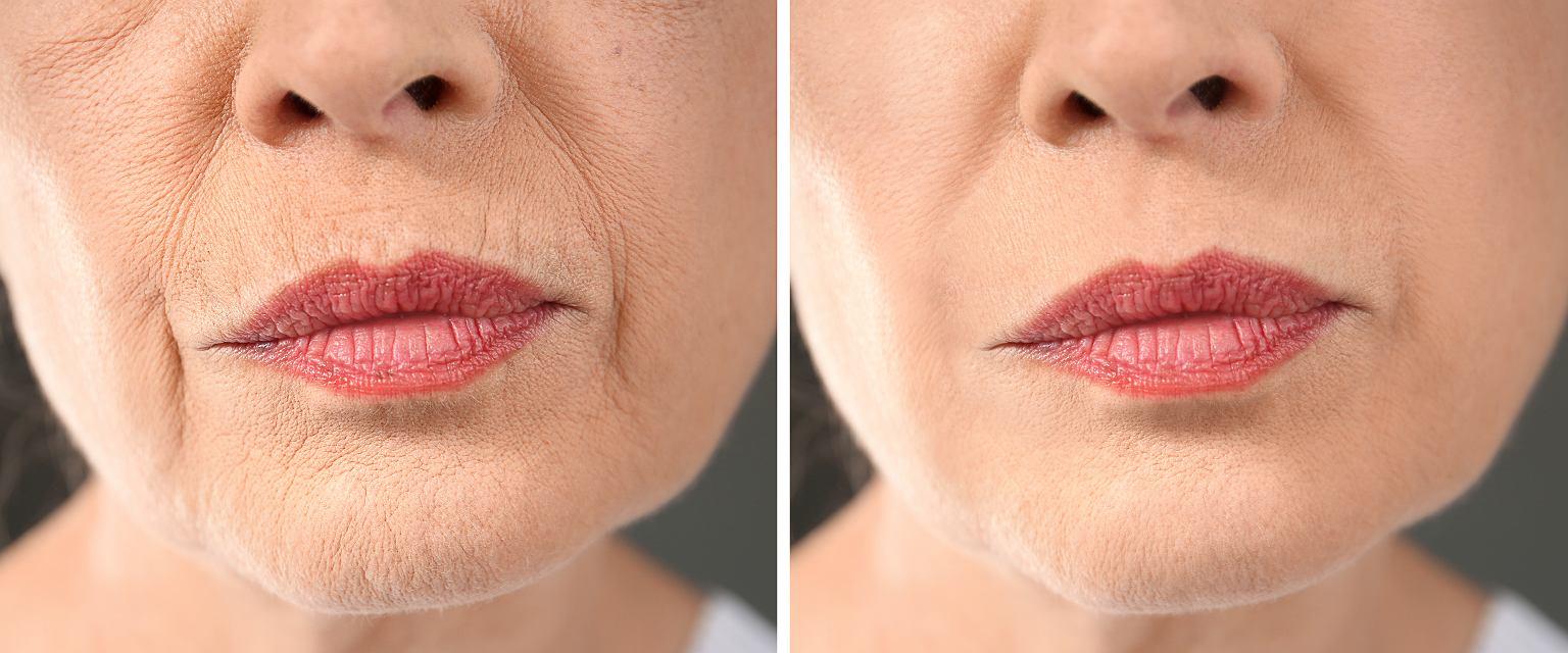 Twarz kobiety przed i po zabiegu rewitalizacji skóry (Shutterstock/Africa Studio)