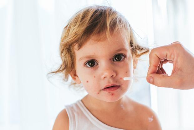 Ospa wietrzna u dzieci - objawy i leczenie. Pielęgnacja w czasie ospy. Jak ulżyć dziecku?