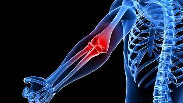 Bóle stawów mogą być skutkiem przeciążenia mięśni, więzadeł lub torebki stawowej