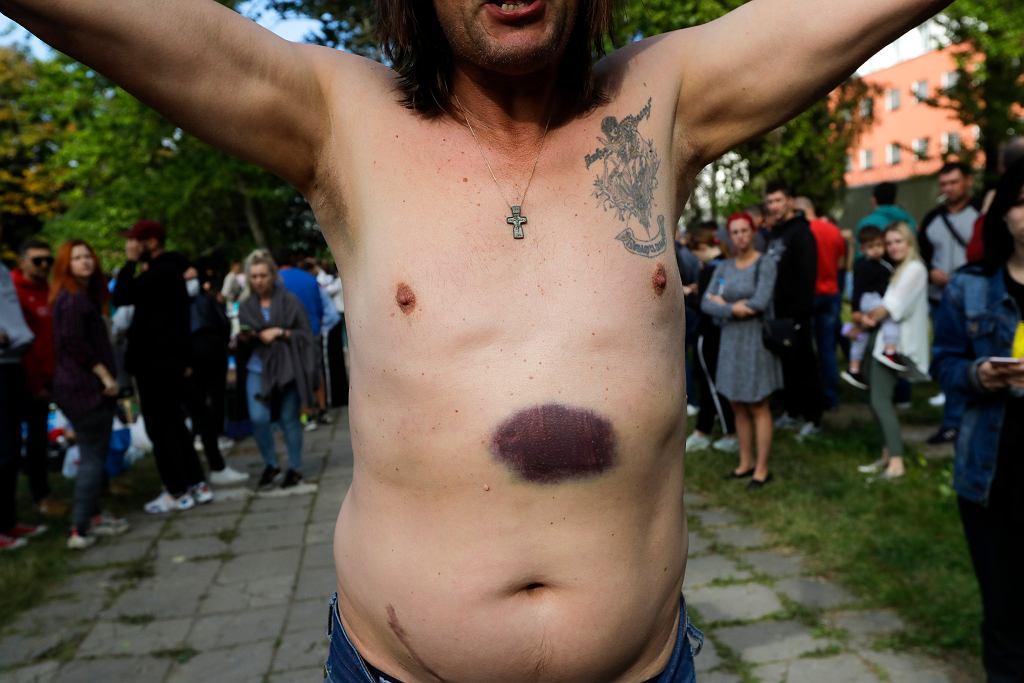 Mężczyzna wypuszczony z aresztu w Mińsku pokazuje rany i sińce po uderzeniach milicjantów, 14 sierpnia 2020 r.