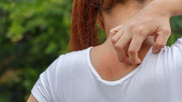 Atopowe zapalenie skóry u dorosłych często występuje na górnej partii pleców. Zdjęcie ilustracyjne