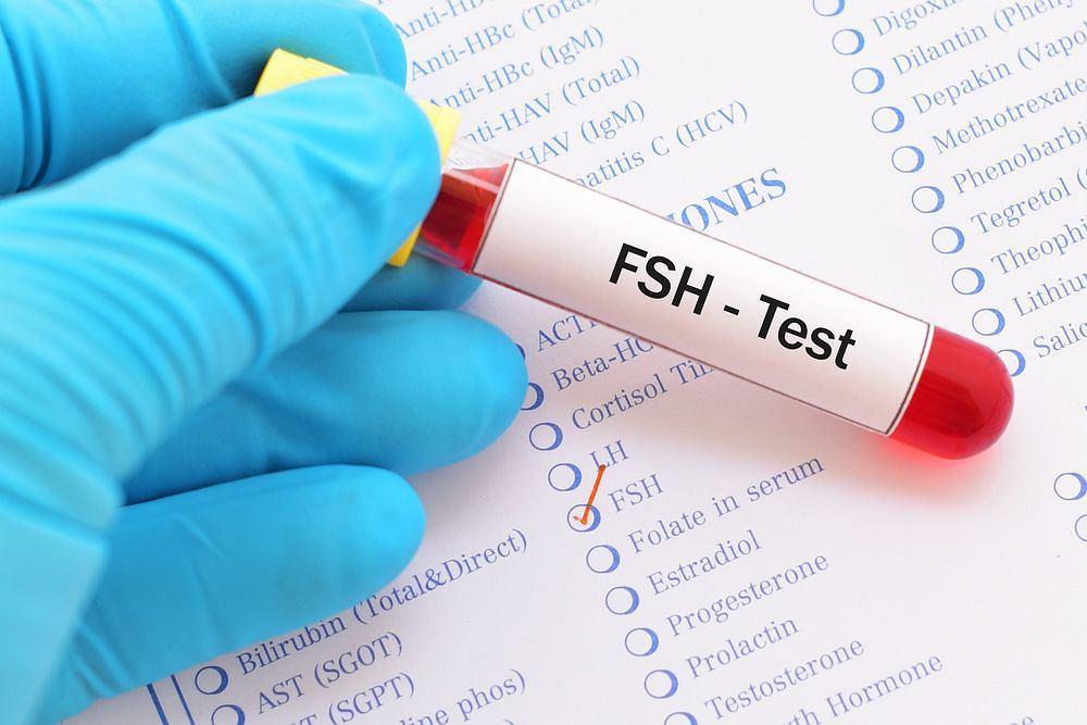 Kontrola poziomu FSH ma sens w trakcie diagnostyki niepłodności, ale nie tylko