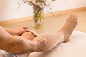 Zakrzepica - co to za choroba i jak wygląda jej leczenie?