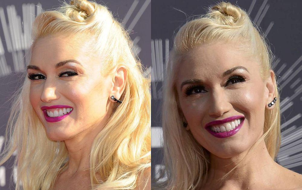 Kiedy Gwen Stefani pojawiła się na czerwonym dywanie na MTV VMA, ledwo ją poznaliśmy. Wokalistka skończy w tym roku 45 lat i, niestety, wzorem innych gwiazd, jak Nicole Kidman czy Madonna, panicznie chce zatrzymać upływ czasu. Efekt jest taki, że nie przypomina już siebie. Dobitnie określiła to znana amerykańska blogerka Lainey Gossip. 'Kiedy przypomnę sobie Gwen z lat 90. i porównam z tym, jak wygląda teraz, to widzę, że upodobania się, sama nie wiem, może do Jennie Garth? Nie wiem, czyją twarz ma Gwen Stefani, ale na pewno nie swoją. A przecież jest tą samą osobą tylko 20 lat starszą' - pisała. Rzeczywiście? Przyjrzeliśmy się jej twarzy.