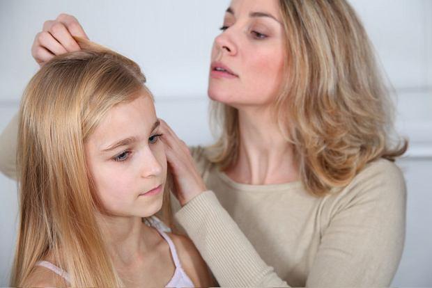 Warto regularnie oglądać głowę dziecka, nawet jeśli aktualnie nie ma informacji o wszawicy.
