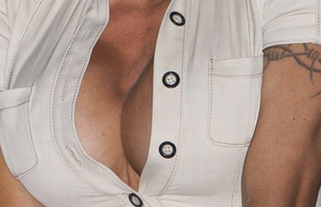 Operacje plastyczne potrafią naprawdę oszpecić ludzkie ciało! Jednym z najczęściej przeprowadzanych zabiegów jest powiększenie biustu. Jednak operacja nie zawsze poprawia wygląd kobiety. W niektórych przypadkach jest wręcz przykro patrzeć na to, co stało się z jej ciałem. Najgorsze jest to, że zazwyczaj, to one same się o to proszą. Zobaczcie specjalnie wybrane przez nas najgorsze biusty show-biznesu!