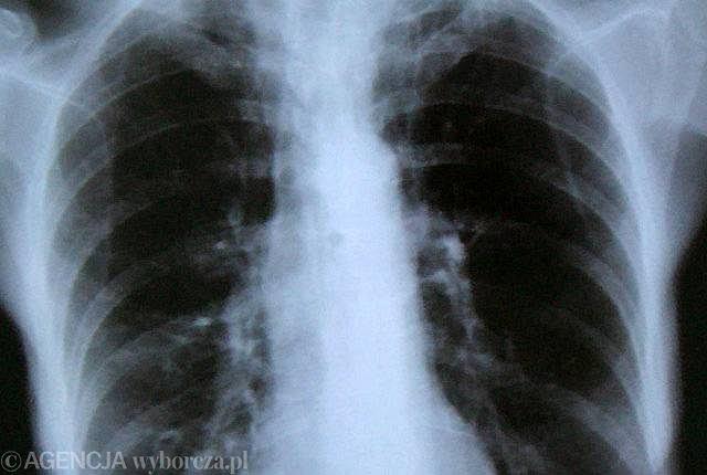 Zdjęcie roentgenowskie klatki piersiowej