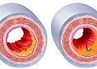 Komórki macierzyste ratują serce po zawale
