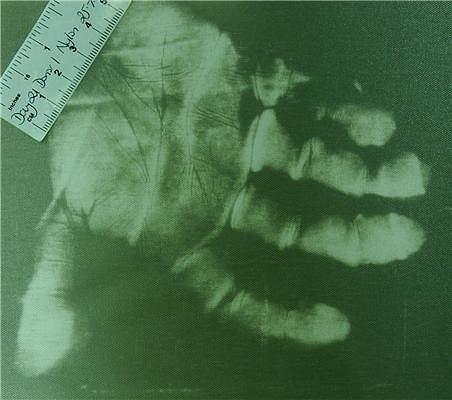 Odcisk dłoni odzyskany z nylonu po 21 dniach