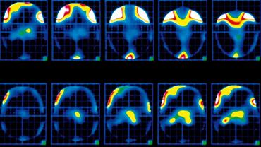 Dusznica bolesna. Obraz pozytonowej emisyjnej tomografii komputerowej (PET) przedstawiający mózg pacjenta podczas napadu dusznicy bolesnej. Mózg jest przedstawiony w przekroju poziomym. Kolory wskazują intensywność napływu krwi, począwszy od białego (maksymalna), poprzez czerwony, żółty, zielony, niebieski (w kolejności malejącej), a kończąc na czarnym (minimalna). U góry można zaobserwować aktywność przedniej części kory mózgowej, która reaguje na ból. U dołu widać wzrastające ukrwienie wzgórza (pośrodku mózgu). Momentom kulminacyjnego ukrwienia odpowiadają chwile odczuwania najdotkliwszego bólu