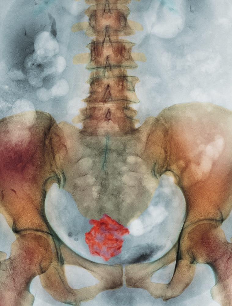 Mięśniak. Zdjęcie kolorowe RTG mięśniaków 65-letniej pacjentki cierpiącej na mięśniaka włóknistego mięśni macicy (u dołu, oznaczony kolorem czerwonym)