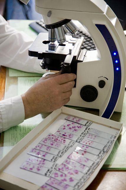 Histopatolog na podstawie analizy mikroskopowej fragmentów tkanek może wykryć wiele zmian patologicznych, zachodzących w organizmie