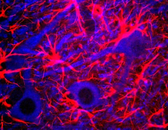 Neurony w hipokampie