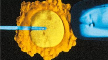 Sztuczne zapłodnienie. Wstrzyknięcie wewnątrzcytoplazmatyczne plemników (ICSI). Jeden plemnik zostaje wstrzyknięty do cytoplazmy komórki jajowej za pomocą specjalnej pipety. Jest to podstawowa forma sztucznego zapłodnienia in vitro, wykonywana od 1993 r.