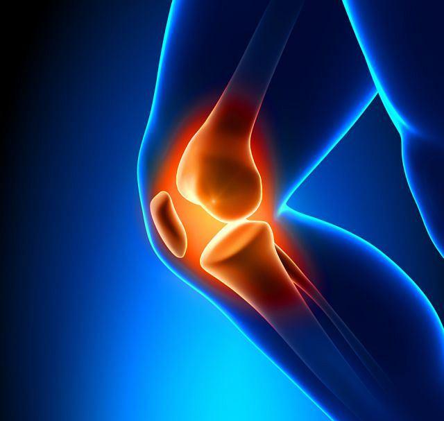 Zmiany chorobowe najczęściej pojawiają się w stawie kolanowym