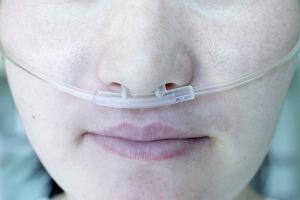 Przewlekła obturacyjna choroba płuc (POChP) - objawy, diagnoza, leczenie