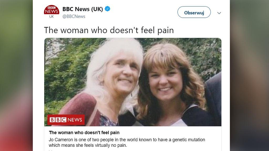 71-letnia kobieta ze Szkocji przez całe swoje życie nie odczuwa bólu. To przez mutacje genów