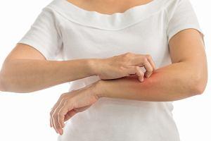 Swędzenie skóry: przyczyny, leczenie. Co oznacza świąd skóry?