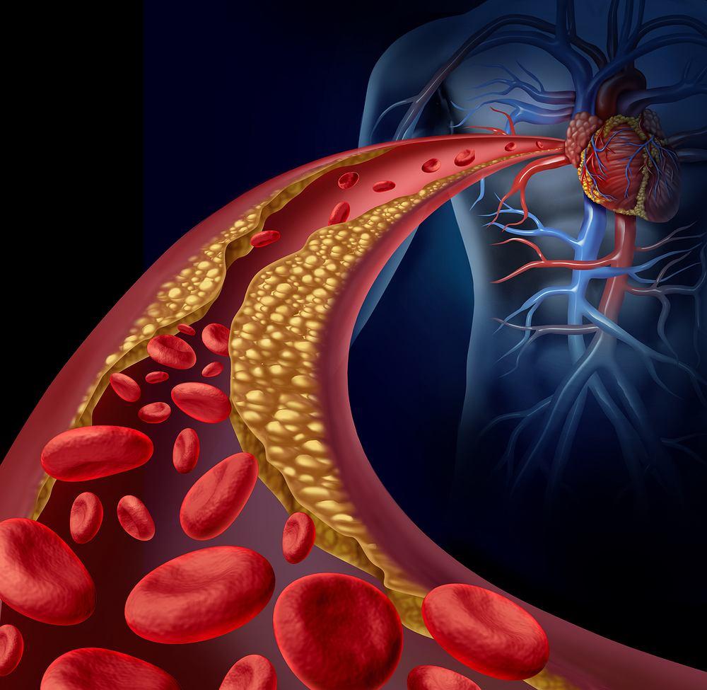 Statyny to środki farmakologiczne, których mechanizm działania polega na hamowaniu produkcji cholesterolu w wątrobie.