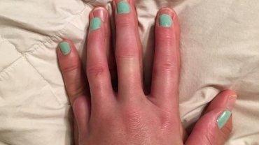 Libby Sanders straciła mały palec u dłoni w marcu