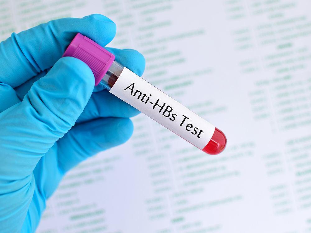 Obecność antygenu HBs we krwi osoby badanej świadczy o zakażeniu wirusem HBV