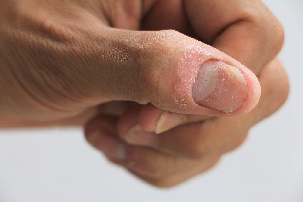 Łuszczyca paznokci występuje najczęściej obok łuszczycy zwyczajnej i stawowej. Zdjęcie ilustracyjne