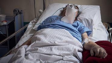 Po pokonaniu koronawirusa pacjenci dalej muszą się leczyć (zdjęcie ilustracyjne)