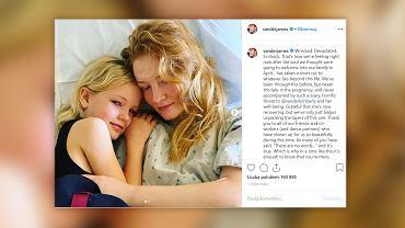 Aktor znany z serialu 'Jezioro marzeń', James Van Der Beek, przekazał smutną informację. Jego żona poroniła