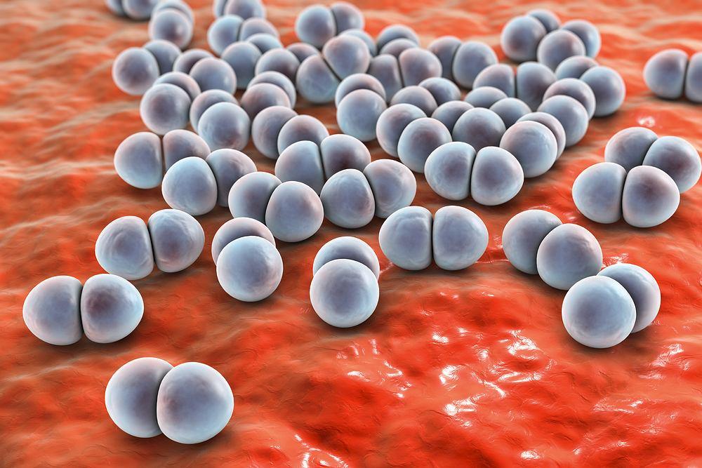 Pneumokoki, znane również pod nazwą dwoinki zapalenia płuc, to bakterie Streptococcus pneumoniae należące do paciorkowców