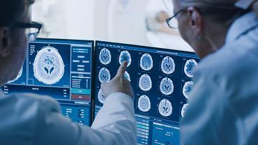 Lekarz i radiolog podczas diagnostyki skanowania mózgu / Fot. Shutterstock.com