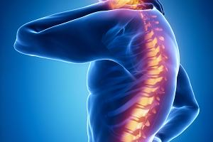 Kanał kręgowy i jego schorzenia:stenoza