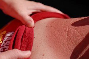 Pieprzyk czy śmiertelnie groźny czerniak: pięć cech, które pozwolą go odróżnić od niegroźnej zmiany skórnej
