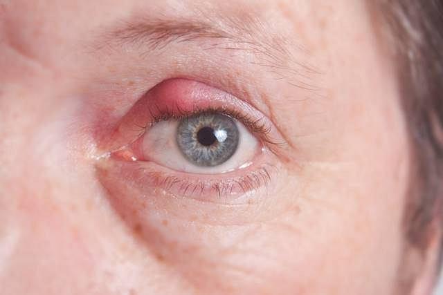 Gradówka częściej występuje u osób z trądzikiem różowatym i łojotokowym zapaleniem skóry