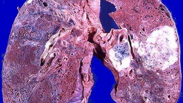 Adenocarcinoma (gruczolakorak płuc)