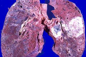 Badania potwierdziły skuteczność nowego leku na raka płuca, wywołanego mutacją genetyczną