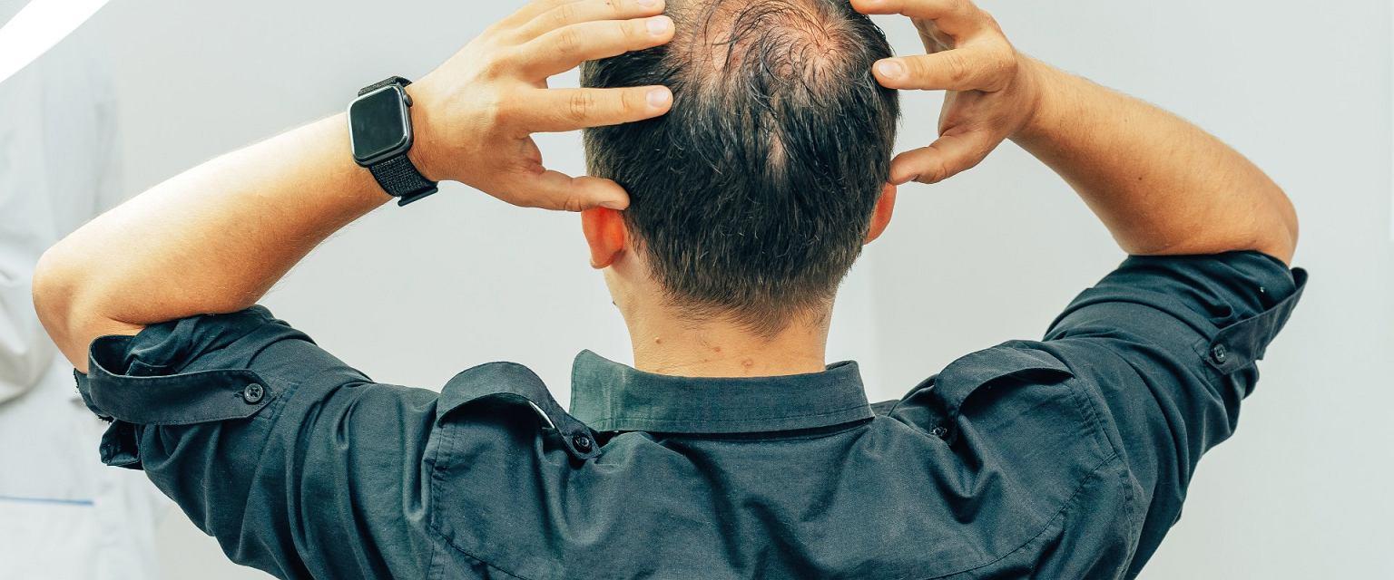 Łysienie istotnie wpływa na samoocenę wielu mężczyzn (Shutterstock.com)