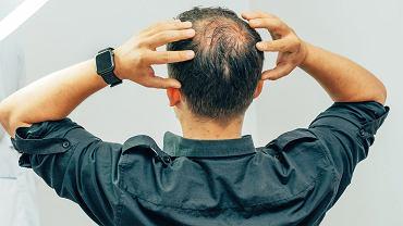 """""""Córka żartowała, że już niewiele mi na tej głowie zostało - trochę włosów po bokach, a na środku placek!"""""""